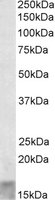 Western blot - SCOC antibody (ab113437)