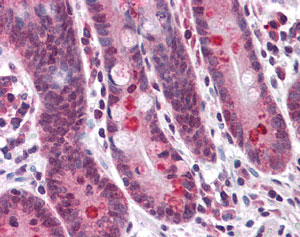 Immunohistochemistry (Formalin/PFA-fixed paraffin-embedded sections) - TMEM16B  antibody (ab113443)