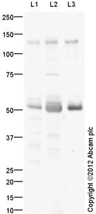 Western blot - Anti-Mannosidase II antibody (ab113448)