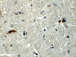 Immunohistochemistry (Formalin/PFA-fixed paraffin-embedded sections) - Anti-Rabex5 antibody (ab113480)
