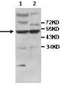 Western blot - IFIT5 antibody (ab113485)