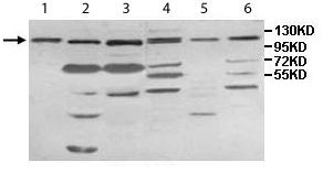 Western blot - IMPG1 antibody (ab113493)