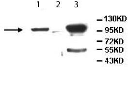 Western blot - ALDH1L2 antibody (ab113496)