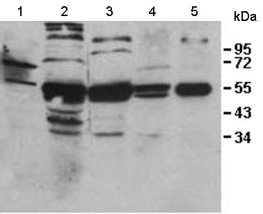Western blot - IL31RA antibody (ab113498)