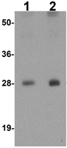 Western blot - Anti-Transmembrane 4 L6 family member 1 antibody (ab113504)