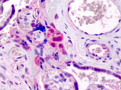 Immunohistochemistry (Formalin/PFA-fixed paraffin-embedded sections) - GATA3 antibody (ab113519)