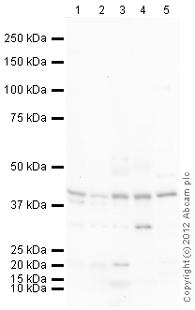 Western blot - Anti-Kappa Opioid Receptor antibody (ab113533)