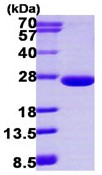 SDS-PAGE - ARL3 protein (ab113590)