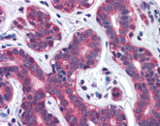 Immunohistochemistry (Formalin/PFA-fixed paraffin-embedded sections) - SNX12 antibody (ab113619)