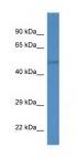 Western blot - IPPK antibody (ab113623)