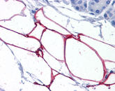 Immunohistochemistry (Formalin/PFA-fixed paraffin-embedded sections) - KIAA1881 antibody (ab113624)