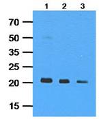 Western blot - NRAS antibody [AT2G9] (ab113627)