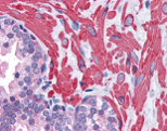 Immunohistochemistry (Formalin/PFA-fixed paraffin-embedded sections) - VPS37C antibody (ab113630)