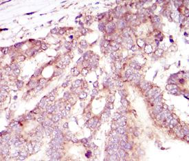 Immunohistochemistry (Formalin/PFA-fixed paraffin-embedded sections) - Anti-HIF-1-alpha [1A3] antibody (ab113642)
