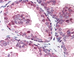 Immunohistochemistry (Formalin/PFA-fixed paraffin-embedded sections) - GOLPH3 antibody (ab113649)