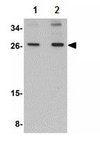 Western blot - SCAMP4 antibody (ab113651)