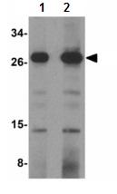 Western blot - OCIAD1 antibody (ab113654)