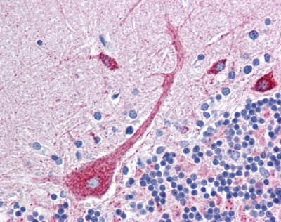 Immunohistochemistry (Formalin/PFA-fixed paraffin-embedded sections) - PLEKHO1 antibody (ab113663)