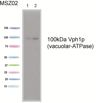 Western blot - VPH1 antibody [10D7A7B2] (ab113683)