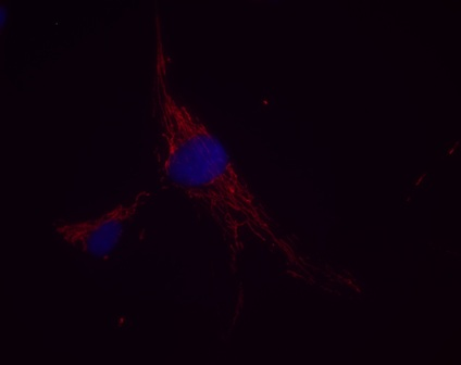 Immunocytochemistry/ Immunofluorescence - GOT2 antibody [8D2BB12] (ab113693)