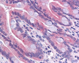 Immunohistochemistry (Formalin/PFA-fixed paraffin-embedded sections) - TMEM70 antibody (ab113705)
