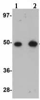 Western blot - TMEM184B antibody (ab113715)