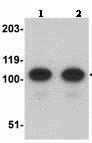 Western blot - AFAP1L2 antibody (ab113718)