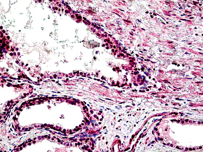 Immunohistochemistry (Formalin/PFA-fixed paraffin-embedded sections) - STEAP2 antibody (ab113719)