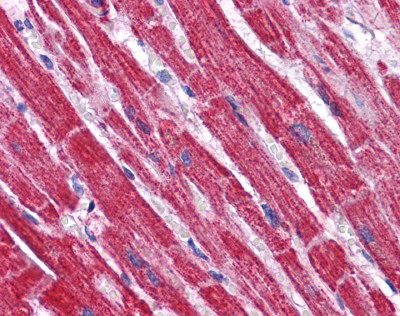 Immunohistochemistry (Formalin/PFA-fixed paraffin-embedded sections) - NDUFB9 antibody (ab113721)