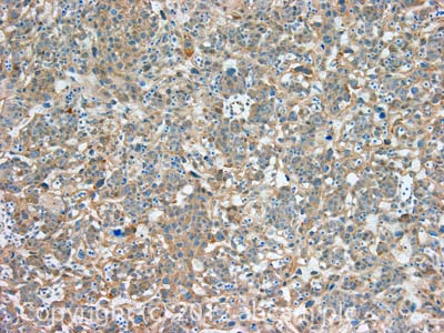 Immunohistochemistry (Formalin/PFA-fixed paraffin-embedded sections) - Anti-ADAM33 antibody (ab113740)