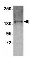 Western blot - TTBK1 antibody (ab113747)