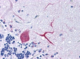 Immunohistochemistry (Formalin/PFA-fixed paraffin-embedded sections) - TTBK1 antibody (ab113747)