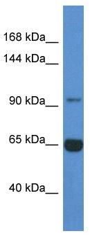 Western blot - MAN2A2 antibody (ab113766)