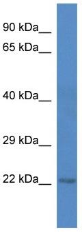 Western blot - C1orf216 antibody (ab113768)