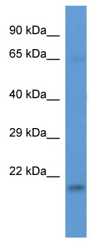 Western blot - LSMD1 antibody (ab113773)