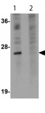 Western blot - Tetraspanin 9 antibody (ab113775)