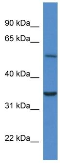 Western blot - CYB5R4 antibody (ab113783)