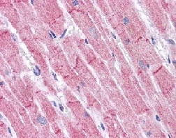 Immunohistochemistry (Formalin/PFA-fixed paraffin-embedded sections) - RHBDD3 antibody (ab113794)