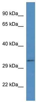 Western blot - BEND6 antibody (ab113807)