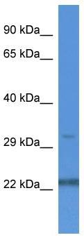 Western blot - NUDT22 antibody (ab113816)