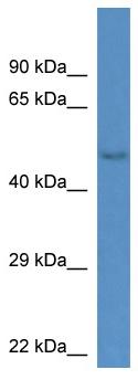 Western blot - Gm13178 antibody (ab113822)