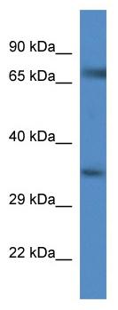 Western blot - Glyt1 antibody (ab113823)