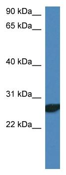 Western blot - NDFIP2 antibody (ab113825)