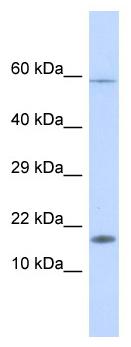 Western blot - HERC4 antibody (ab113827)