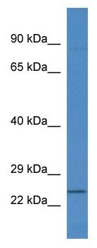 Western blot - RNF183 antibody (ab113828)