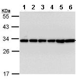 Western blot - 14-3-3 beta antibody (ab113830)