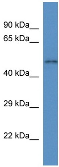 Western blot - SLC35F3 antibody (ab113836)