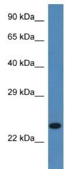Western blot - SSR2 antibody (ab113840)
