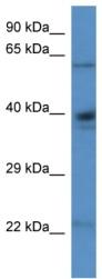 Western blot - ALDH4A1 antibody (ab113843)