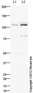 Western blot - Anti-ADAMTS1 antibody (ab113847)